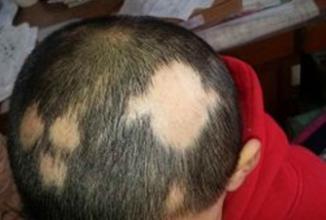 斑秃可以用中药来治疗吗 知识库