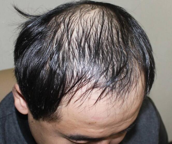 脂溢性脱发是怎么回事,能治好吗 脂溢性脱发是怎么回事,能治好吗? 知识库 第1张