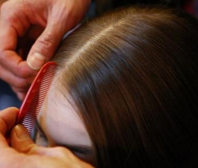 脂溢性脱发是怎么回事,能治好吗 脂溢性脱发是怎么回事,能治好吗? 知识库 第2张