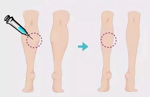 大腿抽脂减肥能喝酒吗 大腿抽脂减肥后不能喝酒的原因 大腿抽脂减肥能喝酒吗 大腿抽脂减肥后不能喝酒的原因 知识库 第1张