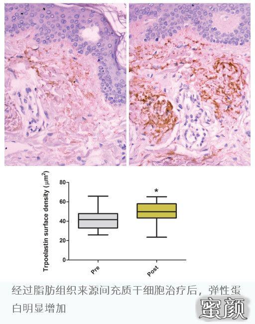 https://img.miyanlife.com/mnt/timg/210317/21353G593-1.jpg 干细胞与抗衰老   对抗皮肤光老化 ,间充质干细胞重塑弹性蛋白网络 知识库 第3张