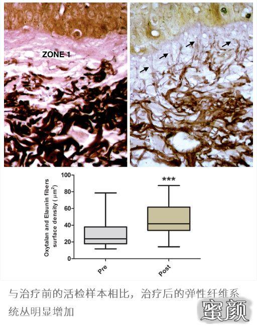 https://img.miyanlife.com/mnt/timg/210317/2135341B4-0.jpg 干细胞与抗衰老   对抗皮肤光老化 ,间充质干细胞重塑弹性蛋白网络 知识库 第2张