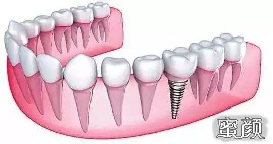 https://img.miyanlife.com/mnt/timg/210315/22254QM8-2.jpg 堪比真牙的种植牙,究竟值不值得做? 知识库 第3张