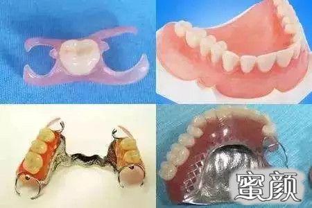 https://img.miyanlife.com/mnt/timg/210315/2225502S2-3.jpg 堪比真牙的种植牙,究竟值不值得做? 知识库 第4张