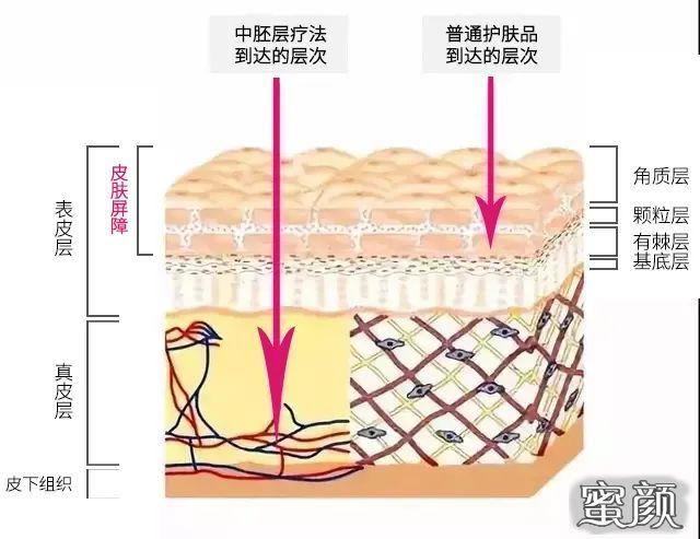 https://img.miyanlife.com/mnt/timg/210317/123AST4-0.jpg 中胚层治疗,储存青春从肌肤开始 知识库 第2张