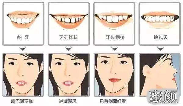 """https://img.miyanlife.com/mnt/timg/210315/2034043T2-1.jpg 关于""""牙齿矫正""""那些事儿,你想知道的全在这里! 知识库 第2张"""