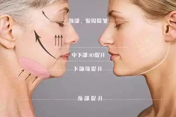 吸脂后皮肤松弛怎么办 吸脂后怎么防止皮肤松弛 吸脂后皮肤松弛怎么办 吸脂后怎么防止皮肤松弛 知识库 第2张