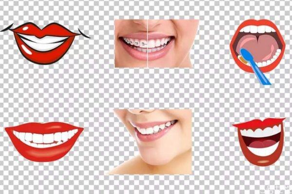 冷光美白牙齿疼吗 如何减轻冷光美白牙齿的疼痛呢 冷光美白牙齿疼吗 如何减轻冷光美白牙齿的疼痛呢 知识库 第1张