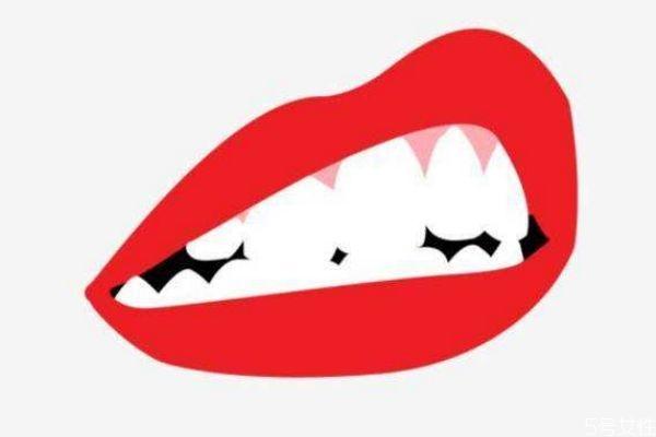 冷光美白牙齿疼吗 如何减轻冷光美白牙齿的疼痛呢 冷光美白牙齿疼吗 如何减轻冷光美白牙齿的疼痛呢 知识库 第3张