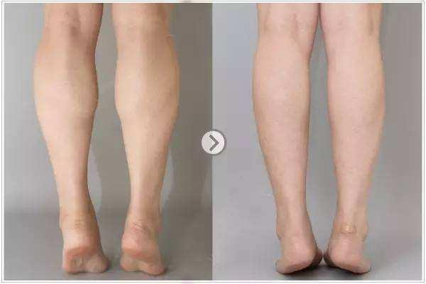 整形瘦腿的方法有哪些 大腿吸脂会影响内分泌吗 整形瘦腿的方法有哪些 大腿吸脂会影响内分泌吗 知识库 第3张