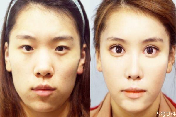 什么人群不能做去肿眼泡手术呢 做这种手术有副作用吗 什么人群不能做去肿眼泡手术呢 做这种手术有副作用吗 知识库 第2张