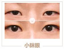 https://img.miyanlife.com/mnt/timg/210313/1Z2213J5-2.jpg 5种双眼皮手术方式及特点,看完再做也不迟! 知识库 第3张