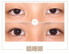 https://img.miyanlife.com/mnt/timg/210313/1Z2211340-1.jpg 5种双眼皮手术方式及特点,看完再做也不迟! 知识库 第2张