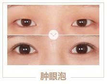 https://img.miyanlife.com/mnt/timg/210313/1Z2226407-3.jpg 5种双眼皮手术方式及特点,看完再做也不迟! 知识库 第4张