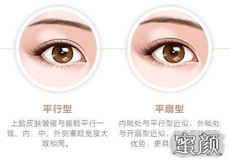https://img.miyanlife.com/mnt/timg/210313/1Z22L340-5.jpg 5种双眼皮手术方式及特点,看完再做也不迟! 知识库 第6张
