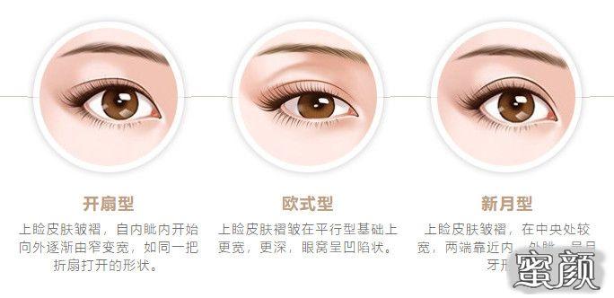 https://img.miyanlife.com/mnt/timg/210313/1Z22T192-6.jpg 5种双眼皮手术方式及特点,看完再做也不迟! 知识库 第7张