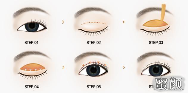 https://img.miyanlife.com/mnt/Editor/2021-03-13/604c9a082af5f.jpg 5种双眼皮手术方式及特点,看完再做也不迟! 知识库 第8张