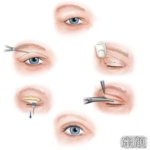 https://img.miyanlife.com/mnt/Editor/2021-03-13/604c9a6a99e8e.jpg 5种双眼皮手术方式及特点,看完再做也不迟! 知识库 第9张