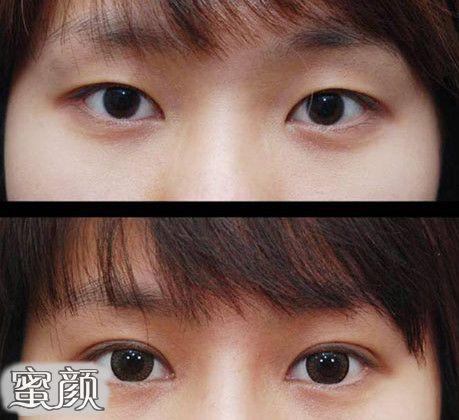 https://img.miyanlife.com/mnt/Editor/2021-03-13/604c9ac397156.jpg 5种双眼皮手术方式及特点,看完再做也不迟! 知识库 第10张
