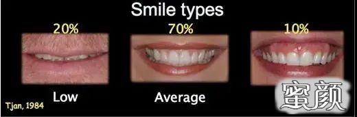 https://img.miyanlife.com/mnt/timg/210313/1924403O0-0.jpg 牙齿矫正:微笑时还好,大笑起来露牙龈是怎么回事? 知识库 第1张