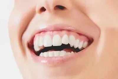 https://img.miyanlife.com/mnt/timg/210313/1924413341-4.jpg 牙齿矫正:微笑时还好,大笑起来露牙龈是怎么回事? 知识库 第5张