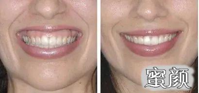 https://img.miyanlife.com/mnt/timg/210313/1924421253-7.jpg 牙齿矫正:微笑时还好,大笑起来露牙龈是怎么回事? 知识库 第7张