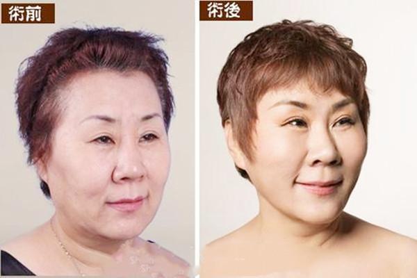 拉皮手术多久能恢复 拉皮手术会留疤吗 拉皮手术多久能恢复 拉皮手术会留疤吗 知识库 第3张