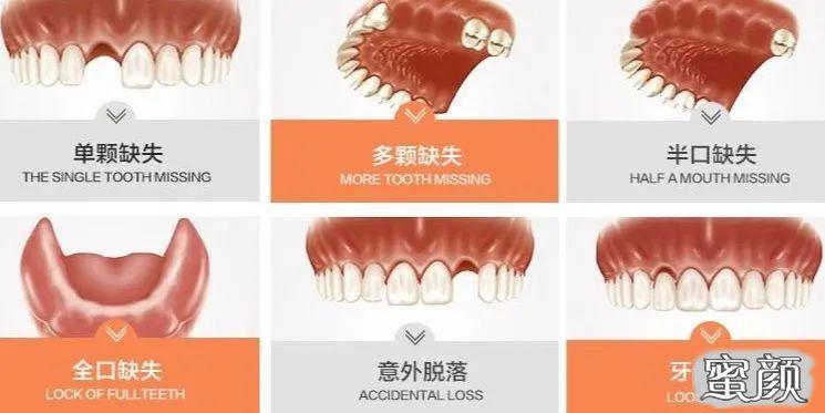 https://img.miyanlife.com/mnt/timg/210312/120633F27-2.jpg 不好意思露牙齿?全口牙缺失真的要种满28颗种植牙吗? 知识库 第4张