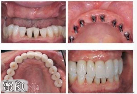 https://img.miyanlife.com/mnt/Editor/2021-03-12/604af603d5c4b.jpg 不好意思露牙齿?全口牙缺失真的要种满28颗种植牙吗? 知识库 第3张