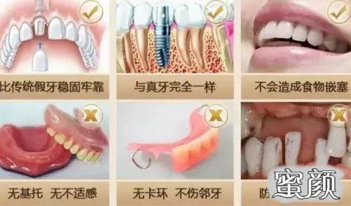 https://img.miyanlife.com/mnt/timg/210312/1206356061-3.jpg 不好意思露牙齿?全口牙缺失真的要种满28颗种植牙吗? 知识库 第5张