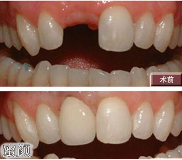 https://img.miyanlife.com/mnt/Editor/2021-03-12/604af5cb8d8b9.jpg 不好意思露牙齿?全口牙缺失真的要种满28颗种植牙吗? 知识库 第6张