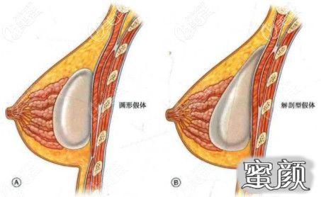 https://img.miyanlife.com/mnt/timg/210311/1KF5D51-2.jpg 假体隆胸和自体脂肪隆胸可以一起做?还是复合隆胸好 知识库 第3张