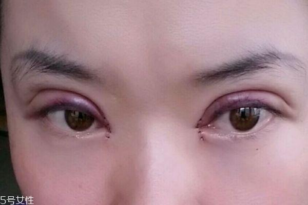 内双割双眼皮容易吗 割双眼皮有什么注意的呢 内双割双眼皮容易吗 割双眼皮有什么注意的呢 知识库 第2张