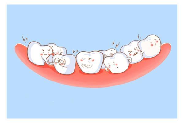 什么是错颌 错颌的危害 什么是错颌 错颌的危害 知识库 第1张