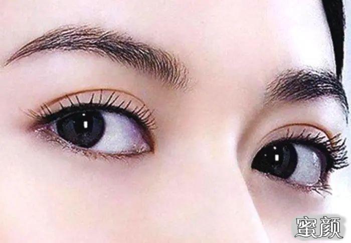 https://img.miyanlife.com/mnt/timg/210310/1P25614a-1.jpg 济南疤痕 瘢痕体质的人能做双眼皮和眼综合手术吗 知识库 第1张