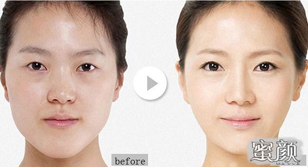 https://img.miyanlife.com/mnt/Editor/2021-03-10/6048a1703185d.jpg 济南疤痕 瘢痕体质的人能做双眼皮和眼综合手术吗 知识库 第3张