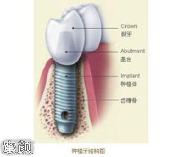 https://img.miyanlife.com/mnt/Editor/2021-03-10/6048dc1599635.jpg 种植牙有年龄限制要求吗?18岁-70岁是种牙最佳年龄 知识库 第3张