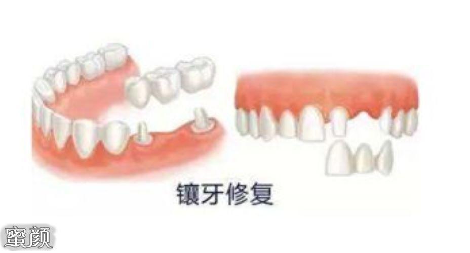 https://img.miyanlife.com/mnt/Editor/2021-03-10/6048e0e778bd0.jpg 种植牙有年龄限制要求吗?18岁-70岁是种牙最佳年龄 知识库 第4张