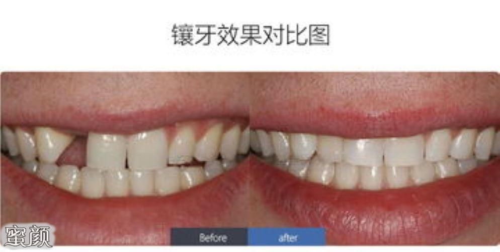https://img.miyanlife.com/mnt/Editor/2021-03-10/6048e0f1c4bd0.jpg 种植牙有年龄限制要求吗?18岁-70岁是种牙最佳年龄 知识库 第5张
