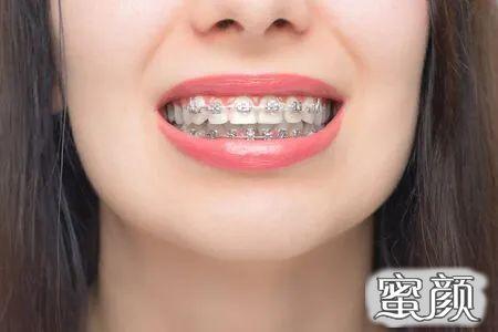 https://img.miyanlife.com/mnt/timg/210309/1642042516-4.jpg 凸嘴应如何正确选择合适的牙套?听听医生怎么说 知识库 第5张