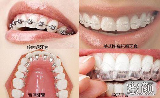 https://img.miyanlife.com/mnt/Editor/2021-03-09/60473478763c3.jpg 凸嘴应如何正确选择合适的牙套?听听医生怎么说 知识库 第6张