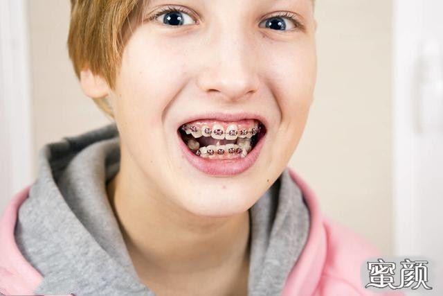 https://img.miyanlife.com/mnt/Editor/2021-03-09/6047348408c50.jpg 凸嘴应如何正确选择合适的牙套?听听医生怎么说 知识库 第7张