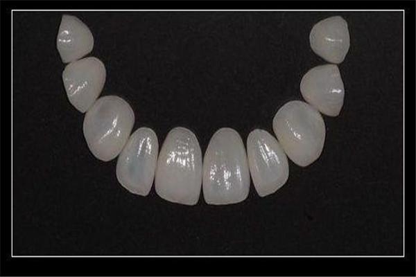 牙齿贴片的副作用是什么 牙齿贴片的危害是什么 牙齿贴片的副作用是什么 牙齿贴片的危害是什么 知识库 第3张