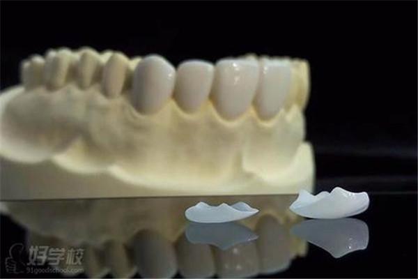牙齿贴片的副作用是什么 牙齿贴片的危害是什么 牙齿贴片的副作用是什么 牙齿贴片的危害是什么 知识库 第2张