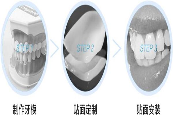 牙齿贴片的副作用是什么 牙齿贴片的危害是什么 牙齿贴片的副作用是什么 牙齿贴片的危害是什么 知识库 第1张