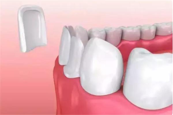 牙齿贴片能保持几年 压制贴片能保持多久 牙齿贴片能保持几年 压制贴片能保持多久 知识库 第2张