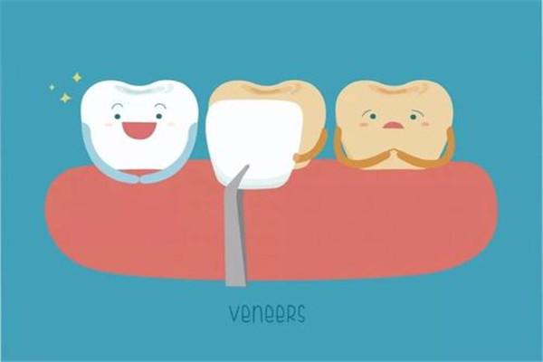 牙齿贴片能保持几年 压制贴片能保持多久 牙齿贴片能保持几年 压制贴片能保持多久 知识库 第3张