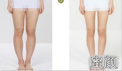 https://img.miyanlife.com/mnt/Editor/2021-03-09/6046f4e24fc9a.jpg 囤了一冬天的肉,如何美美穿裙子?「吸脂」让我秒变气质女王! 知识库 第9张
