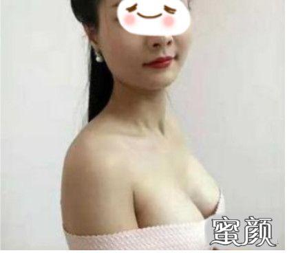 https://img.miyanlife.com/mnt/timg/210228/2030333520-1.jpg 成都华西医美医生肖海涛自体脂肪隆胸案例分享 知识库 第4张