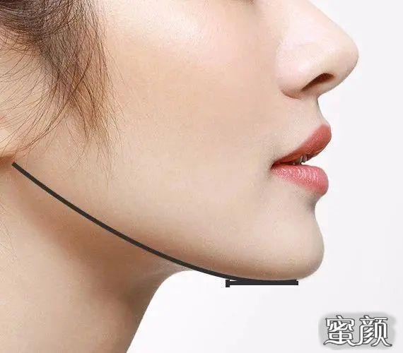 https://img.miyanlife.com/mnt/timg/210228/21510625D-2.jpg 科普丨下颌角手术,如何达成审美喜好与面部基础的平衡 知识库 第3张